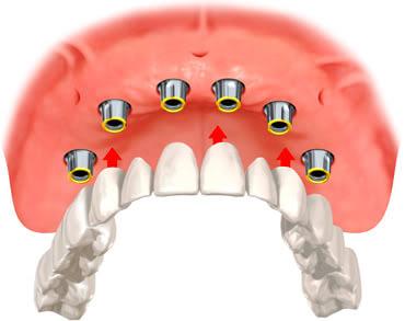 implant protez