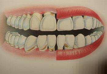 diş eti iltahabı durumunda implant