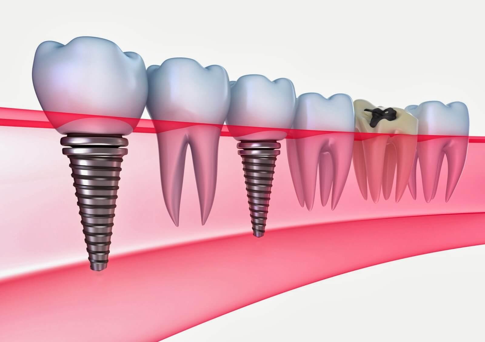 implant-dis-tedavisi