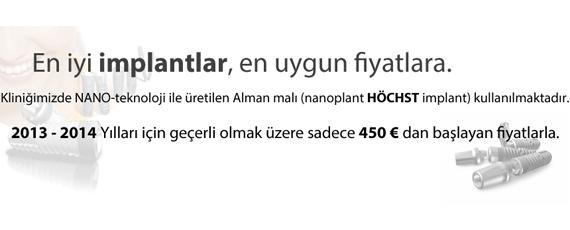 İmplant Fiyatları / 2013-2014