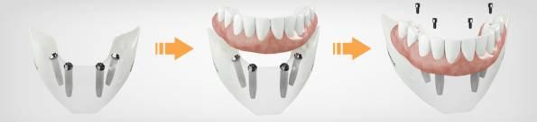 implant-fiyatlari-2