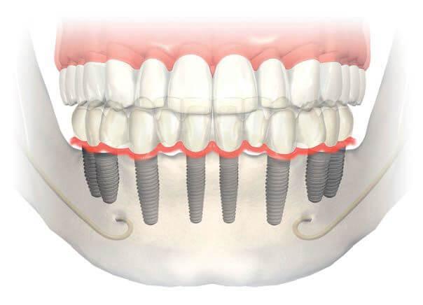implant yapımı ne kadar sürer