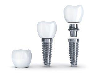 implant nasıl sabitlenir