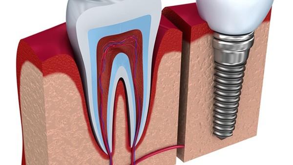 implantın avantajları