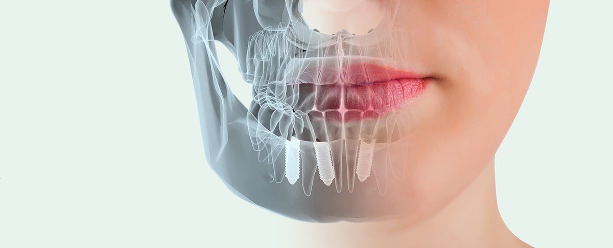 implantın uzun ömürlü olması için neler yapılmalı