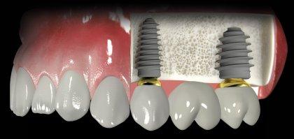 implant fiyatlari3