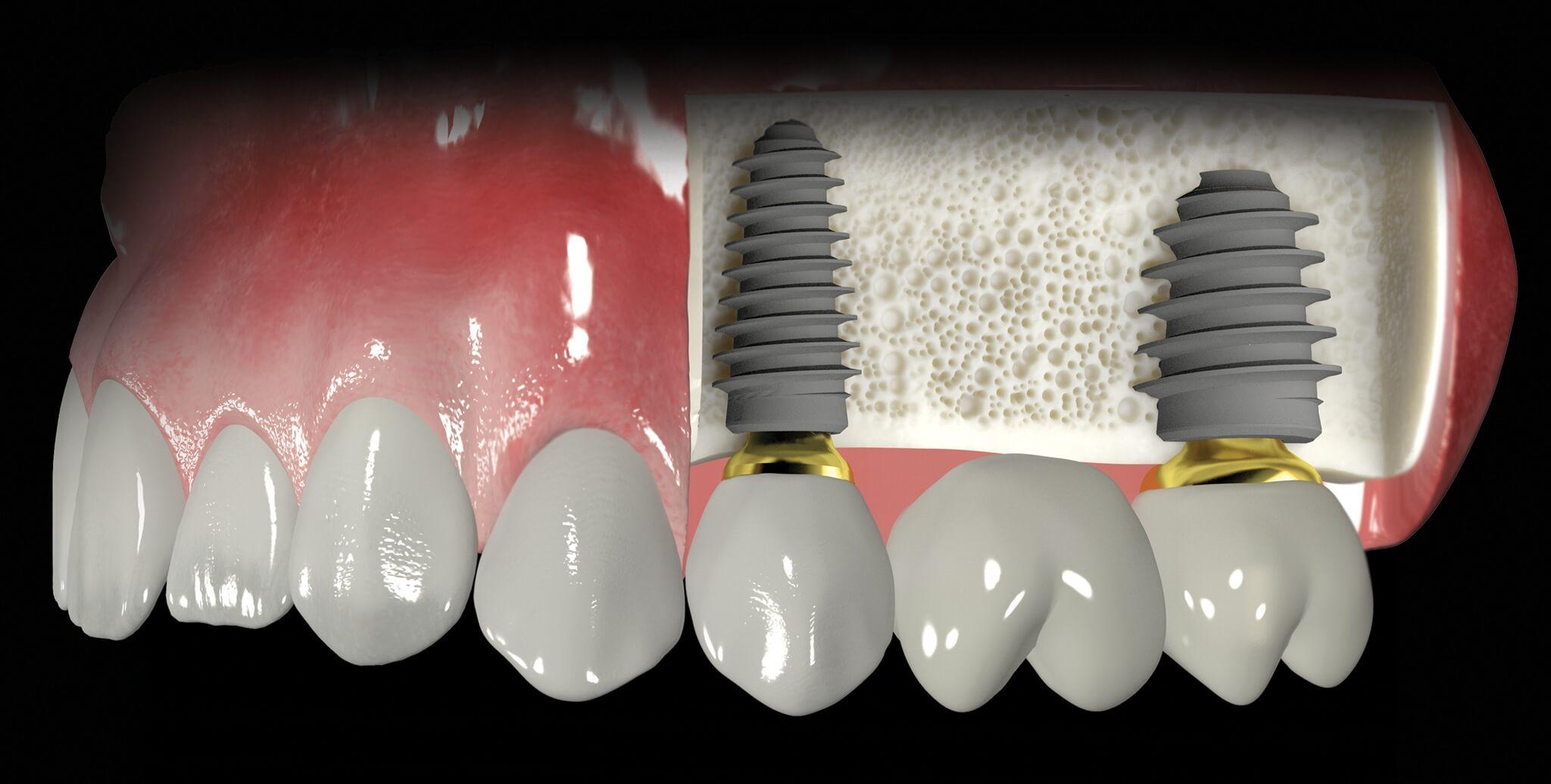 implant yaptırırken nelere dikkat etmeli