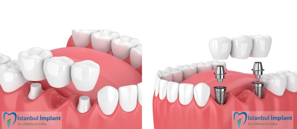 implant ile köprü arasındaki farklar