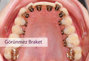lingual braket
