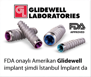 glidewell direct implant