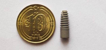 neden implant yaptırmalıyız