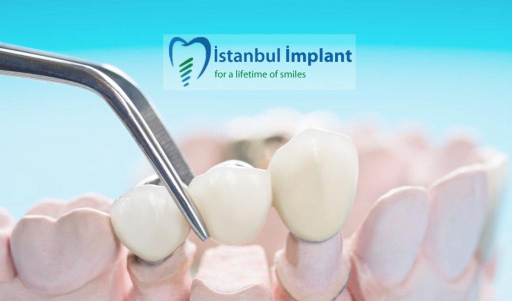 implant üzerine protez nasıl yerleşir