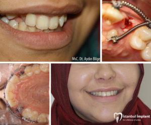 diş teli fiyatları 1