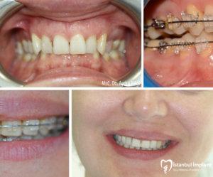 diş teli fiyatları 2