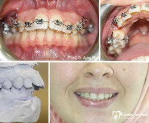 diş teli fiyatları 3
